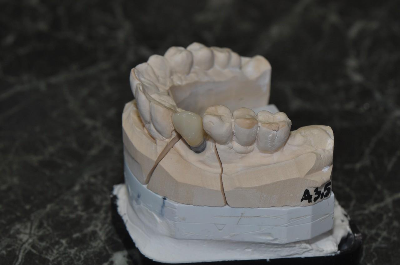 egyedi-implantatum-fejek-szolo3as-002