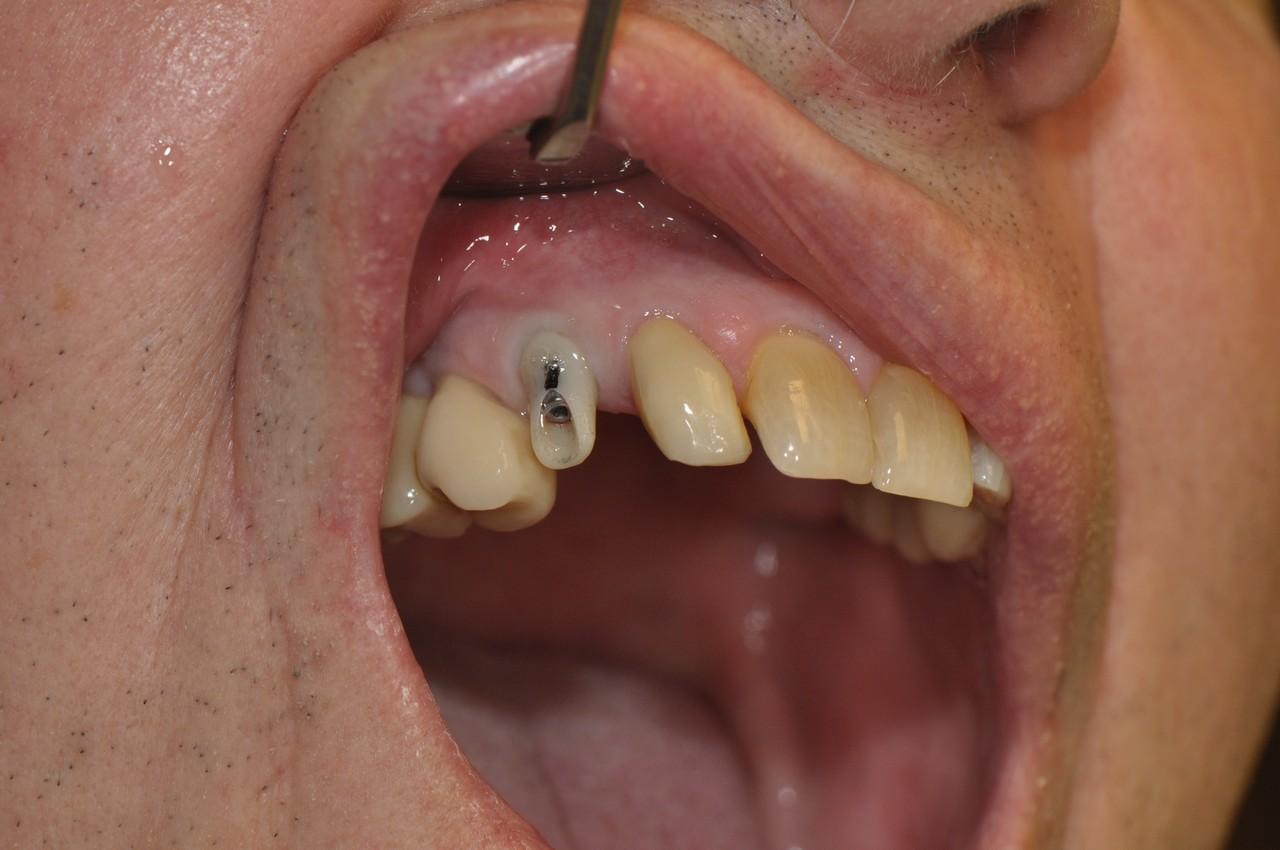 egyedi-implantatum-fejek-szolo3as-003