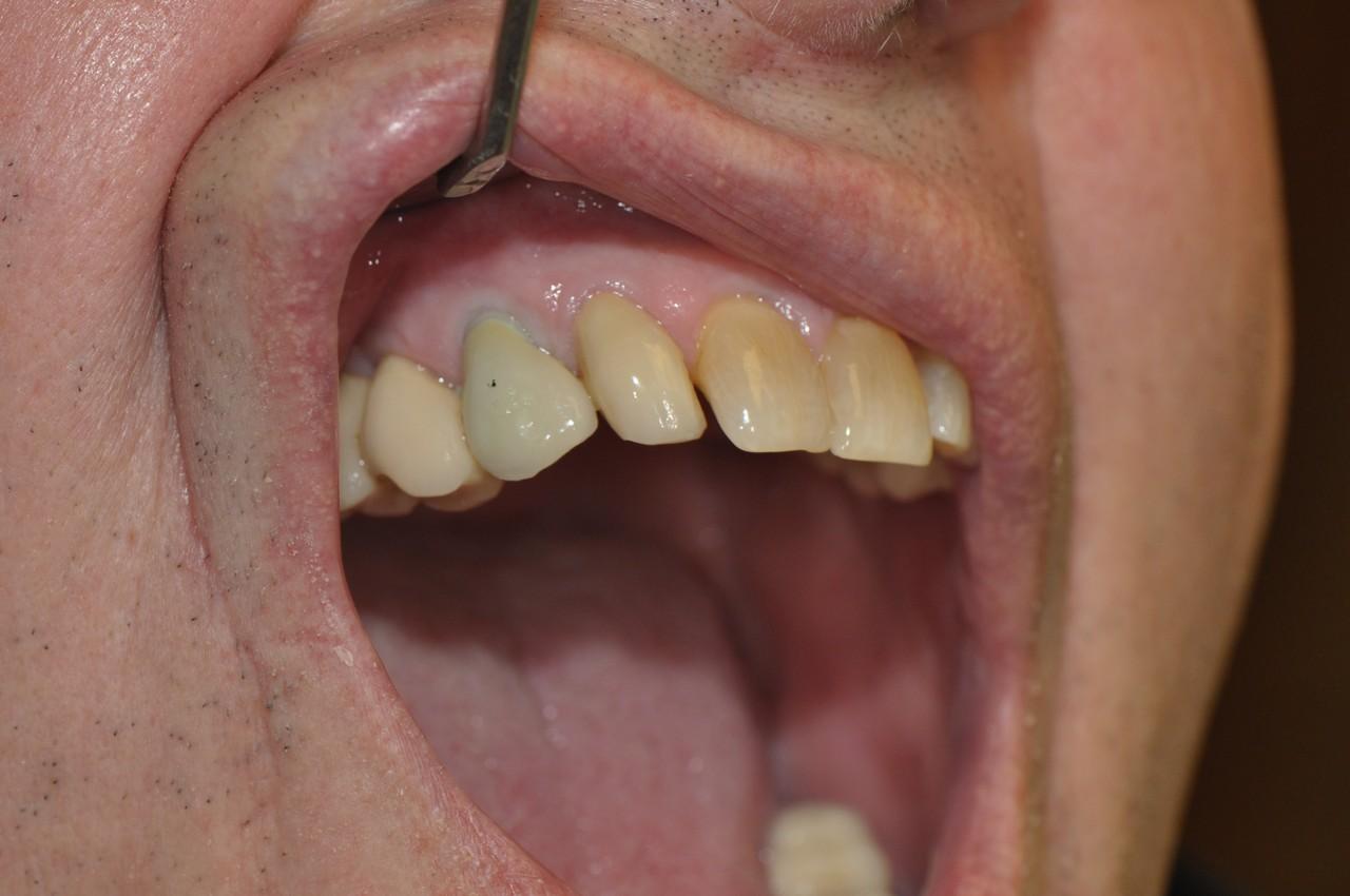 egyedi-implantatum-fejek-szolo3as-004