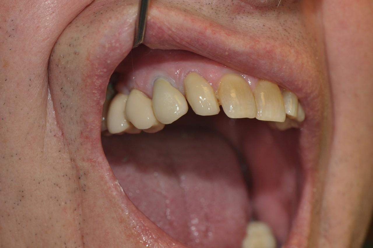 egyedi-implantatum-fejek-szolo3as-005