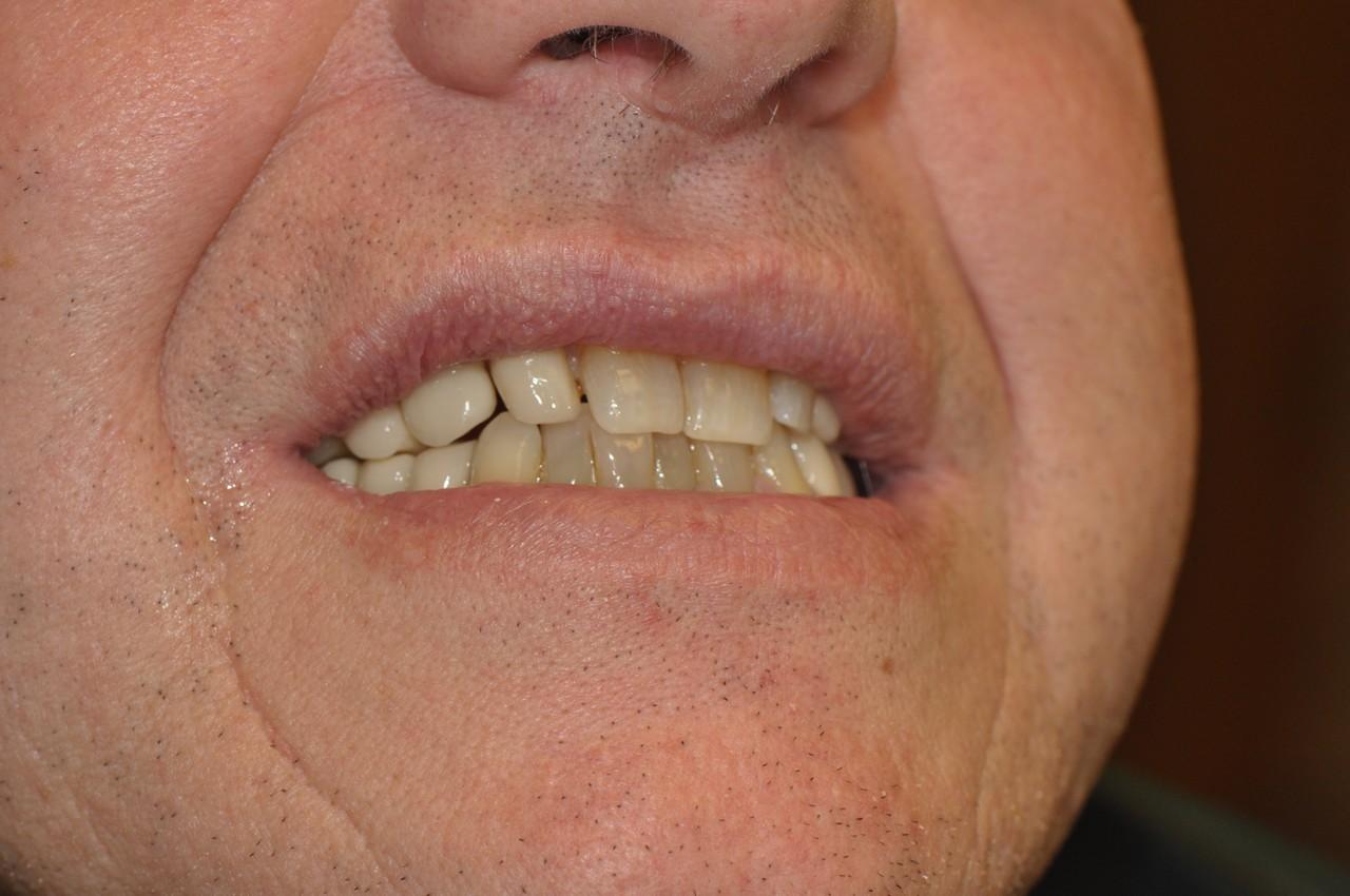 egyedi-implantatum-fejek-szolo3as-006