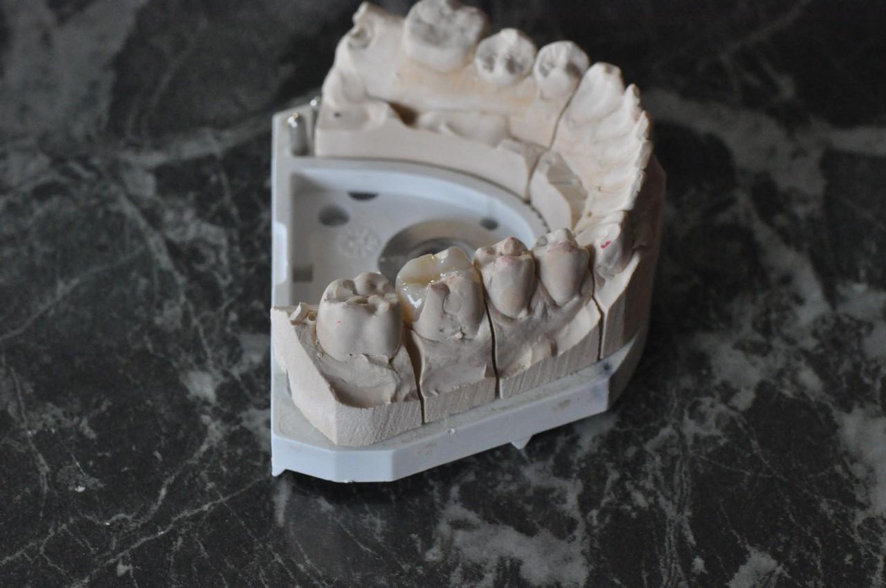 anatomikus-festett-cirkon-potlasok-004